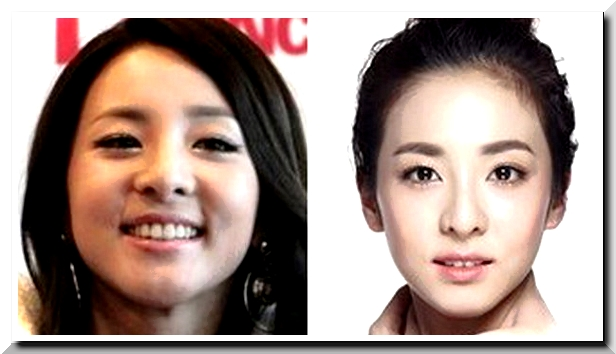 What did the Buzz say on Sandara Park Plastic Surgery Rumors?