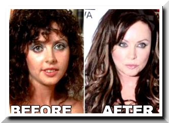 Sarah Brightman Plastic Surgery Scandals – Was it true American Beauty?