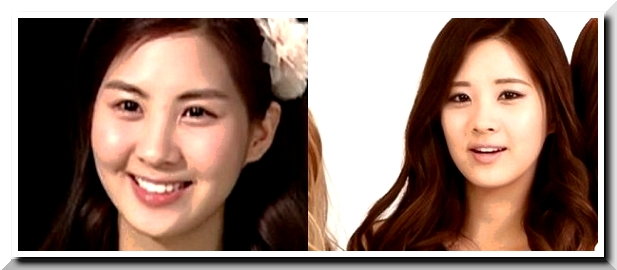 Did Seohyun Have Plastic Surgery? Another Flaw in SNSD?